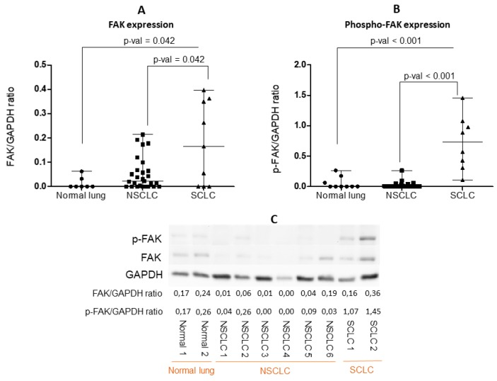 Quantification of ( A ) FAK and ( B ) phospho-FAK expression evaluated by Western blot (WB), with normalization to glyceraldehyde 3-phosphate dehydrogenase (GAPDH ) expression, in nine normal lungs, 30 non-small-cell lung cancer (NSCLC), and 10 small-cell lung cancer (SCLC) tissue lysates. Each dot represents one sample. Data presented as the mean ± S.D. Significance determined by the Kruskal-Wallis test. ( C ) Illustration of a representative WB of FAK and phospho-FAK (Y397) expression in normal lung, NSCLC, and SCLC tissue lysates. All the WB are represented in Supplementary Figure S1 .