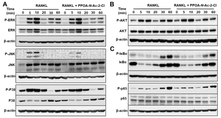PPOA- N -Ac-2-Cl attenuates osteoclastogenesis via inhibition of MAPK and IκBa/p65 (NF-κB) signaling pathways. ( A – C ) BMMs were stimulated with 100 ng/mL RANKL for 0, 5, 10, 20, 30, or 60 min after pretreatment with 6 μM PPOA- N -Ac-2-Cl or DMSO for 2 h, and the phosphorylation of MAPKs, Akt, IκBa, and p65 was analyzed by immunoblotting. The densitometry graphs for the blots are shown in Figure S3 . β-actin was used as the loading control.