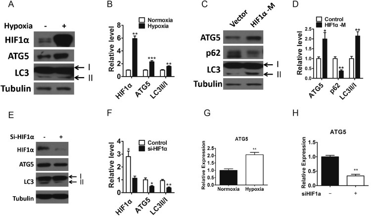 ATG5 is a hypoxia responsive gene. A–B, Western blotting(A) and densitometry(B) analysis of the protein levels of HIF1α, ATG5 and LC3 in PC-3 cells exposed to normoxia or 1% O 2 for 24 h. Tubulin was used as a loading control. C–D, Western blotting (C) and densitometry (D) analysis of the protein levels of ATG5, p62 and LC3 in PC-3 cells transfected the HIF1α mutant plasmids (HIF1α-M) or vector for 48 h. Tubulin was used as a loading control. E–F, Western blotting (E) and densitometry (F) analysis of the protein levels of HIF1α, ATG5 and LC3 in PC-3 cells transfected with HIF1α siRNA (si-HIF1α) or nonsense control for 48 h. Tubulin was used as a loading control. G, Relative mRNA level of ATG5 in PC-3 cells exposed to normaxia or hypoxia for 24 h. H, Relative mRNA level of ATG5 in PC-3 cells transfected with HIF1α siRNA or nonsense control for 48 h. Means ± s.e.m are shown.* P