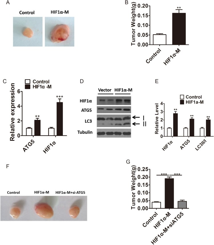HIF1α promotes tumor cell proliferation in vivo by promoting ATG5 expression and autophagy levels. A–B, Representative images (A) and tumor weight (B) of tumor xenograft samples in nude mouses inoculated with wild type or HIF1α-overexpressd PC cells. C, Relative mRNA expression of HIF1α and ATG5 in harvested tumor xenograft samples of control or HIF1α-overexpressd group. D–E Western blotting (D) and densitometry (E) analysis of the protein levels of HIF1α, ATG5 and LC3 in harvested tumor xenograft samples of control or HIF1α-overexpressed group. Tubulin was used as a loading control. F–G, Representative images (F) and tumor weight (G) of tumor xenograft samples in nude mouses inoculated with wild type, HIF1α-overexpressd or both HIF1α-overexpressd and ATG5 konckdown PC cells Means ± s.e.m are shown. * P