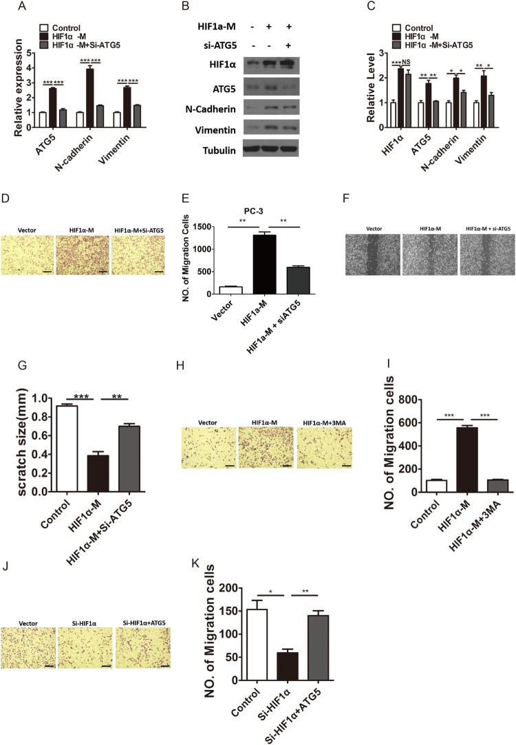 HIF1α promotes metastasis of PC-3 cells by promoting ATG5 expression and autophagy levels. A, Relative mRNA expression of ATG5, N-cadherin and Vimentin in PC-3 cells transfected with vector, HIF1α-M or both HIF1α-M and si-ATG5 oligonucleotide. B–C, Western blotting (B) and densitometry (C) analysis of the protein levels of HIF1α, ATG5, N-cadherin and Vimentin in PC-3 cells transfected with vector, HIF1α-M or both HIF1α-M and si-ATG5 oligonucleotide. Tubulin was used as a loading control. D–E, Representative photographs (D) and number of migration cells (E) of transwell migration assay of PC-3 cells transfected with Vector, HIF1α-M or both HIF1α-M and si-ATG5 oligonucleotide. Scale bar, 200 uM.HIF1αHIF1αHIF1αHIF1αF-G, Representative photographs (F) and quantification of scratch size (G) of wound-healing assay of PC-3 cells transfected with Vector, HIF1α-M or both HIF1α-M and si-ATG5 oligonucleotide.HIF1αHIF1α. H-I, Representative photographs (H) and number of migration cells (I) of transwell migration assay of PC-3 cells treated with Vector, HIF1α-M or both HIF1α-M and 3MA. Scale bar, 200 uM. J-K, Representative photographs (J) and number of migration cells (K) of transwell migration assay of PC-3 cells transfected with Vector, si-HIF1α or both si-HIF1α-M and ATG5 exposed to hypoxia. Scale bar, 200 uM. Means ± s.e.m are shown.* P