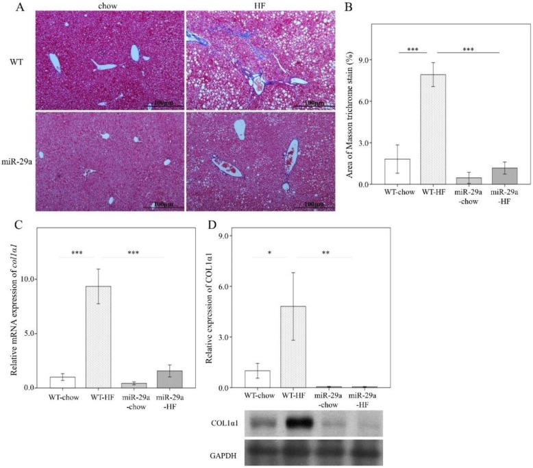 Overexpression of miR-29a reduces liver fibrosis in the context of chronic HFD. Paraformaldehyde-fixed paraffin-embedded liver tissue was used to determine collagen fiber accumulation using Mason's trichrome stain. Liver tissue stored at −80 ℃ was used for RNA and protein extraction for subsequent qPCR and Western blot experiments, respectively. ( A ) Representative Masson's trichrome stain image of each group. Blue color indicates positive signal of collagen fiber. ( B ) Positive signal percentage quantified using ImageJ. ( C ) mRNA expression level of col1 α1 , with β-actin level as normalization control. ( D ) Representative immunoblotting bands of COL1α1 protein abundance and densitometric results, with glyceraldehyde 3-phosphate dehydrogenase (GAPDH) as the loading control. For the imaging study, data were collected from five fields of view of each specimen and five to eight specimens for each group. For qPCR and Western blot, five to seven specimens were used for each group. Data are expressed as mean ± SE. * p