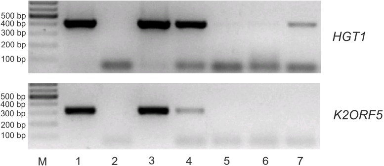 K2ORF5 mRNA is outcompeted by cellular RNA in binding to the yeast cap-binding protein eIF4E in vitro . Electrophoretic analysis of semiquantitative RT-PCR detecting control HGT1 mRNA (upper panel) and K2ORF5 mRNA (lower panel) in samples as follows: Lane 1, glutathione-Sepharose with the bound GST-eIF4E fusion protein in the presence of excess K. lactis IFO1267 total RNA (input); lane 2, same as in line 1 but the reaction was performed without reverse transcriptase (negative control); lane 3, supernatant from the first wash step (unbound mRNA); lanes 4, 5, and 6, supernatants after the second, third, and sixth wash steps, respectively (unbound mRNA); lane 7, mRNA remaining bound on GST-S.c-eIF4E Sepharose after the sixth wash step. M, GeneRuler 100-bp DNA Ladder Plus (Thermo Scientific). PCR was performed using cDNA, Taq DNA polymerase, and the gene-specific primers listed in Supplementary Table S1 . All washing steps were performed with 70 volumes of buffer I. The initial abundances of HGT1 and K2ORF5 mRNA in the K. lactis total RNA were comparable as determined by qRT-PCR ( Supplementary Figure S3 ).