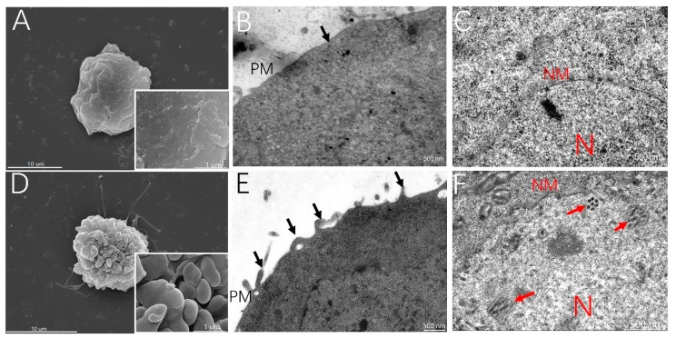 MβCD treatment induced membrane ruffling, facilitating the BmNPV infection of Sf21 cells. Sf21 cells were treated with or without 0.25 mM MβCD for 30 min and infected with vBmBac-ph-egfp at a MOI of 30 for 2 h at 4 °C. The cells were then fixed and processed for electron microscopy. ( A , D ) scanning electron microscopy analysis on the surface of cells mock-treated or pretreated with MβCD. ( B , E ) transmission electron microscopy analysis of the membrane of cells mock-treated or pretreated with MβCD. Black arrows show the protrusion and closure of ruffles. ( C , F ) Internal subcellular analysis of Sf21 cells mock-treated or pretreated with MβCD. Red arrows show the virions. N, nucleus; PM, plasma membrane; NM, nuclear membrane.