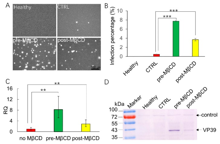 MβCD induction post infection rescues BmNPV infection in Sf21 cells. Sf21 cells were mock-treated, or MβCD-treated (0.25 mM) for 30 min before or after vBmBac-ph-egfp infection for 2 h (MOI = 30). ( A ) Representative images of fluorescence expression in Sf21 cells infected with vBmBac-ph-egfp at 72 h p.i. Scale bars, 100 µm. ( B ) Flow cytometry analysis of vBmBac-ph-egfp infection in Sf21 cells at 72 h p.i. (** p