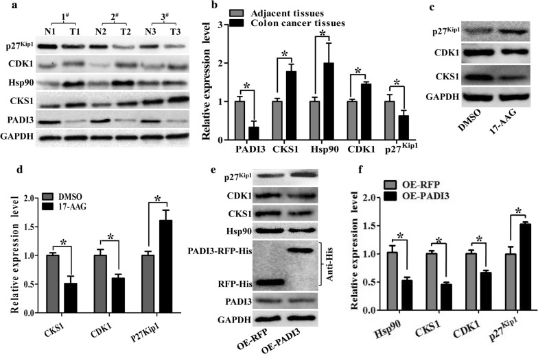 Both 17-AAG and PADI3 can suppress CKS1 expression in HCT116 cells. a Expression profile of PADI3, CKS1, Hsp90, CDK1 and p27 kip1 were detected using western blot in colon cancer tissues and their corresponding adjacent tissues at the translational level, GAPDH was used to normalize the relative expression of them; b statistical analysis of western blot results in A; c 5 μM 17-AAG was used to treat HCT116 cells for 24 h, and western blot was used to measure the expression level of CKS1, CDK1 and p27 kip1 ; d Statistic analysis of c ; e Overexpression of PADI3 was performed in HCT116 cells, and western blot was used to detect the expression level of Hsp90, CKS1, CDK1 and p27 kip1 , overexpression of RFP as the control group; f statistical analysis of western blot results in e . GAPDH was selected as the internal control, *indicates p