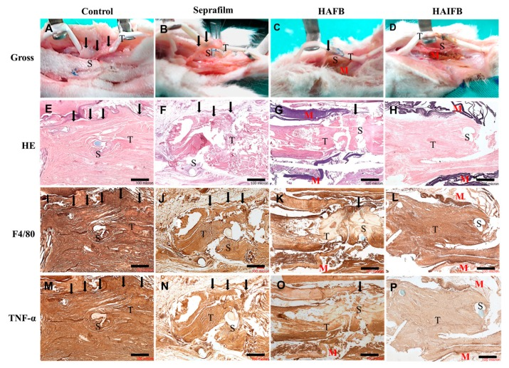 Gross view ( A – D ), H E ( E – H ), F4/80 ( I – L ), and TNF-α ( M – P ) stainings of tissue sections of the repaired flexor digitorum profundus (FDP) tendons of the untreated control group and the experimental groups treated with Seprafilm ® , HAFB, and HAIFB 3 weeks post-operation. Bar = 100 μm. T: tendon; S: suture; M: membrane; black arrows: sites where adhesion occurred.