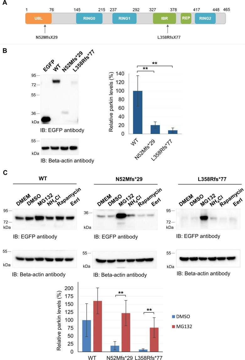 Parkin truncating variants have reduced protein expression. ( A ) Schematic representation of parkin (NP_004553) functional domains and location of the frameshift variants identified in Portuguese patients. ( B ) Analysis of protein expression of EGFP-tagged parkin clones in HEK293T cells by immunoblotting with anti-EGFP antibody. <t>Beta-actin</t> was used as loading control. Original blots are presented in Supplementary Fig. S2 . Quantification data (graph) are presented as the mean ± SD of three independent experiments; **p