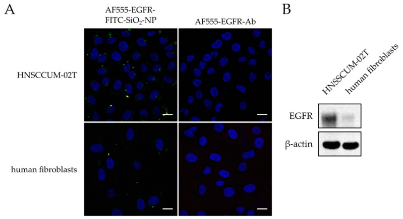Comparison of AF555-EGFR-FITC-SiO 2 -NPs and AF555-EGFR-Ab immunostaining in HNSCCUM-02T and human fibroblasts. ( A ) HNSCCUM-02T cells and primary human fibroblasts were incubated with 100 µg/mL AF555-EGFR-FITC-SiO 2 -NPs or the corresponding amount of AF555-EGFR-Ab for 30 min at 37 °C. Then, the cells were washed, fixed, and embedded in DAPI-containing mounting medium. The nuclei are shown in blue, the FITC-SiO 2 -NPs in green, the AF555-EGFR-Ab in red, and the co-localization in yellow. More AF555-EGFR-FITC-SiO 2 -NPs attached to the cellular membranes of HNSCCUM-02T cells than primary human fibroblasts. The AF555-EGFR-Ab alone did not stain the cells. Thus, FITC-SiO 2 -NPs are required for contrast enhancement and antibody-conjugation improved the specificity. Scale: 20 µm. ( B ) Immunoblot analysis of EGFR expression in HNSCCUM-02T cells and primary human fibroblasts. HNSCCUM-02T cells express much more EGFR than the used primary human fibroblasts. <t>β-Actin</t> was used as the loading control.