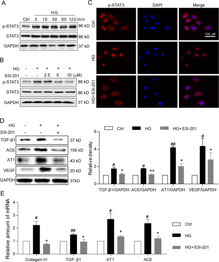 S3I-201 inhibits high glucose-induced STAT3 activation and pro-fibrotic responses in rat renal tubular epithelial cell line. a Time-course of STAT3 phosphorylation (Tyr-705) in rat renal tubular epithelial cells (NRK-52E) stimulated with high glucose (HG; 33 mM); shown is representative Western blot analysis, Ctrl = no glucose control, GAPDH = loading control, n = 4. b Effects of S3I-201 pretreatment on HG-induced STAT3 phosphorylation in NRK-52E cells. Cells were treated with S3I-201 (2.5, 5, and 10 µM) for 1 h, stimulated with HG 30 min, cells collected for Western blot analysis; shown is representative blot from four determinations. c For nuclear localization of p-STAT3, S3I-201 pretreated NRK-52E cells were stimulated with HG for 30 min, and immunofluorescence detection of p-STAT3 (red) evaluated (Methods), DAPI = nuclear fluorescence stain (blue), MERGE = overlaid images, n = 4. Scale bar = 100 μm; 600 × amplification. d , e Fibrosis-related proteins and signaling molecules were detected. Rat renal tubular epithelial cells (NRK-52E) were pretreated with S3I-201 (10 µM) for 1 h and stimulated with HG for 24 h. Representative western blot analysis of TGF-β1, ACE, AT1, and VEGF with GAPDH as loading control; corresponding densitometric analysis of blots, values normalized to loading control GAPDH and reported relative to Ctrl ( d ). Quantitative RT-PCR determination of Collagen IV, TGF-β1 AT1, and ACE mRNA, values normalized to house-keeping gene β-actin and reported relative to Ctrl ( e ). Data are represented as the mean ± SEM of four independent experiments; # p