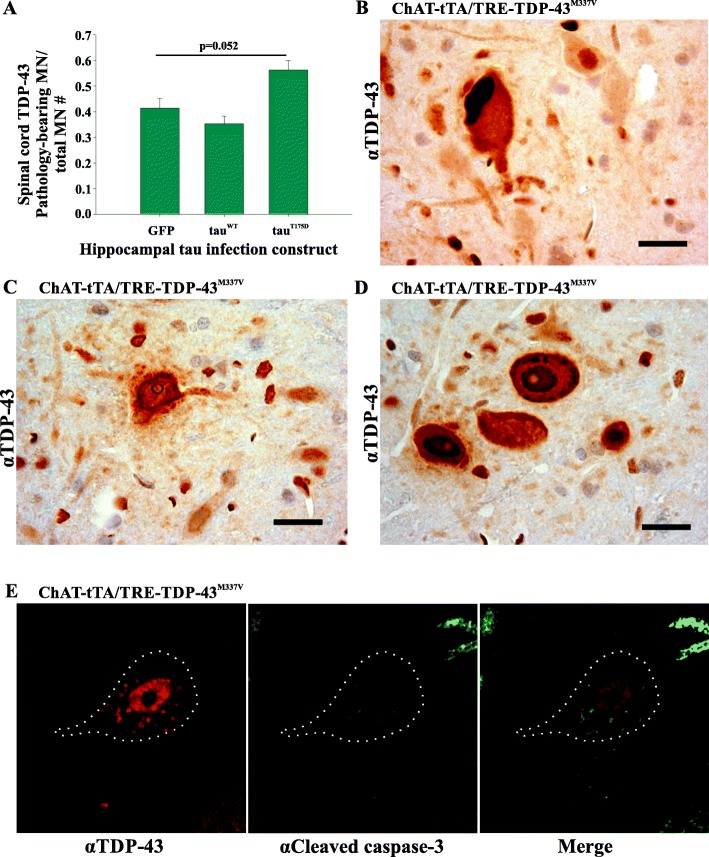 Spinal cord TDP-43 pathology in ChAT-tTA/TRE-TDP-43 M337V rats was detected by immunohistochemistry with anti-TDP-43 antibodies regardless of hippocampal injected tau construct. a Frequency of pathology-bearing motor neurons normalized against total number of motor neurons. The presence of spinal TDP-43 pathology approaches significance in the rats expressing tau T175D when compared to GFP expressing rats ( p