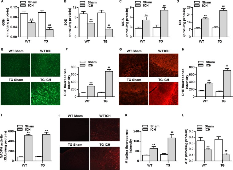 RNF34 overexpression potentiates the ICH-induced mitochondrial ROS generation in mouse brain. ( A – D ) The levels of GSH ( A ), SOD ( B ), MDA ( C ), and NO ( D ) in brain tissues from WT and RNF34 transgenic mice with sham or ICH surgery was determined. n = 6/group. ( E ) ROS generation in brain sections was determined by H 2 DCF-DA staining. ( F ) Quantitative analysis of DCF fluorescence intensity. ( G ) Superoxide anion was examined by dihydroethidium (DHE) staining. ( H ) Quantitative evaluation of DHE fluorescence intensity was performed. n = 4/group. ( I ) NADPH oxidase activity was measured. n = 6/group. ( J ) Mitochondrial ROS generation was determined using MitoSOX Red staining. ( K ) Quantitative evaluation of MitoSOX fluorescence intensity. n = 5/group. ( L ) ATP activity was measured. n = 6/group. ** P