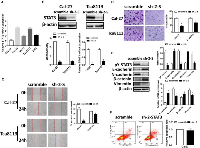 STAT3 knockdown inhibits migration, invasion potential, and EMT in OSCC cells. (A) STAT3 mRNA levels were evaluated using qRT-PCR in SCC25, Cal-27, HSC3, Tca8113, and UM1 cells. (B) STAT3 expression was detected by qRT-PCR and Western blot after transfected with STAT3 shRNA in OSCC cells. (C) Images of the wound closure of monolayer Cal-27 and Tca8113 cells with STAT3 knockdown at the time point of 0 and 24 h are presented on the left. Quantitative results are illustrated on the right. (D) The effect of STAT3 knockdown on OSCC cells invasion were determined by Transwell assay with Matrigel, and the representative images are on the left. Quantitative results are illustrated on the right. (E) The effects of Cal-27-STAT3 knockdown on expressions of EMT markers, E-cadherin, N-cadherin, β-catenin, and Vimentin, were measured using qRT-PCR and Western blot. β-actin was used as a loading control. (F) Flow cytometry was used to examine the percentage of apoptotic cells in Cal-27 cells with STAT3 knockdown and scramble control cells. All assays were carried out in triplicate. Results were shown as means ± SD. * P