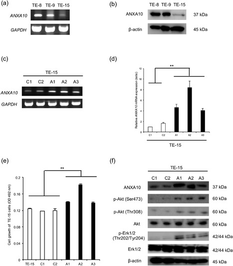 Effects of ANXA10 overexpression in TE‐15 cells. ( a, b ) The expression of ANXA10 in ESCC cell lines (TE‐8, TE‐9 and TE‐15) were confirmed by RT‐PCR ( a ) and western blotting ( b ). The expression of ANXA10 in the TE‐15 cells was significantly lower than that of TE‐8 and TE‐9 cells. ( c, d ) The effects of ANXA10 vector transfection in ANXA10 expression in TE‐15 cells (three clones: A1, A2, A3) were evaluated. Increased ANXA10 mRNA expression in the transfected cells compared to control cells (two clones: C1, C2) was confirmed by RT‐PCR ( c ) and qRT‐PCR ( d ). GAPDH was used as an internal control. Data are mean ± SEM in triplicate. ** P