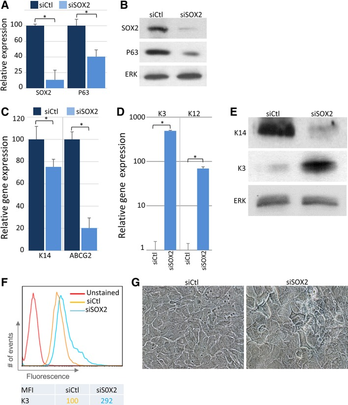 SOX2 prevents cell differentiation. Primary limbal cells were transfected with siSOX2 or control esiRNA, and 72 hours later, the expression of SOX2 and P63 was examined by real‐time polymerase chain reaction (PCR) (A) or Western blot analysis (B) . ERK served as loading control. Quantitative real‐time PCR analysis of the indicated markers of stem/progenitor cells (C) or markers of differentiated cells (D) , or cells were lysed and subjected to Western blot analysis of the indicated markers (E) (ERK served as loading control) or immunostaining of K3 was followed by flow cytometry analysis (F) . (G): The morphological changes upon siSOX2 repression are shown by bright field microscopy (×20 objective). (A, C, D): Data represent mean ± SD, n = 3 and statistical significance was assessed by t test (*, p