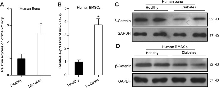 miR-214-3p and β-catenin expression in diabetic osteoporosis patients. a qRT-PCR analysis of miR-214-3p mRNA levels in human bone specimens from healthy people or patients with T1DM ( n = 3). b qRT-PCR analysis of miR-214-3p mRNA levels in BMSCs from healthy people or patients with T1DM ( n = 3). c Western blot analysis of β-catenin in the bone specimens isolated from patients with T1DM or healthy people. d Western blot analysis of β-catenin in the BMSCs isolated from patients with T1DM or healthy people. All data are expressed as mean ± SEM, * p