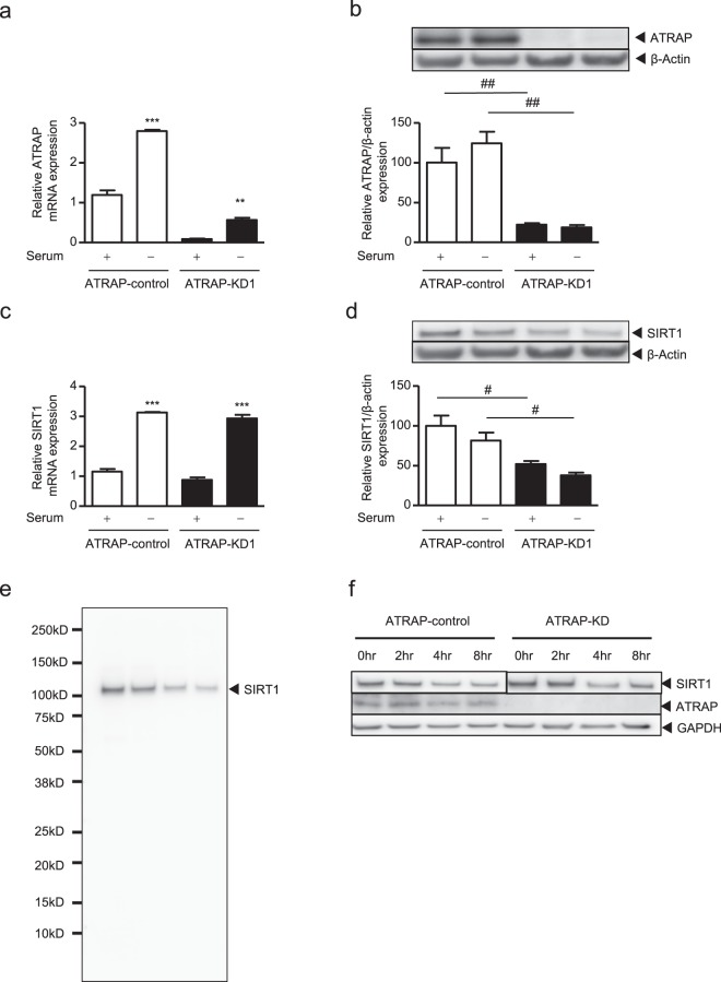 Effect of ATRAP knockdown on SIRT1 mRNA and protein expression with or without serum-withdrawal. The ciRPTEC were treated with negative control siRNA (ATRAP-control, a–f ), ATRAP siRNA #1 (ATRAP-KD1, a–f ) for 48 hours, followed by serum withdrawal for 24 hours ( a–e ). ( a,c ) The relative mRNA levels of ATRAP ( a ) or SIRT1 ( c ) on ciRPTEC were determined by RT-qPCR, normalized to 18 S ribosomal RNA. mRNA levels in the presence of serum (+) and the control siRNA were set to 1. ( b,d ) The relative protein expression of ATRAP and SIRT1 in the ciRPTEC was determined by western blot analysis, normalized to β-actin expression. Protein levels in the presence of serum (+) and control siRNA were set to 100. SIRT1 proteins were detected with an antibody towards the N-terminal 1–131 amino acids (SIRT1_N lot 2465249). ( e ) SIRT1 protein detected with an antibody recognising the C-terminal region (SIRT1_C). ( f ) Half-life analysis of the SIRT1 protein was performed 48 hours after siRNA transfection of ciRPTEC cells and treatment with emetine to repress de-novo protein synthesis. Cell lysates were collected at 0, 2, 4 and 8 hours after emetine treatment. SIRT1 proteins were detected with the SIRT1_C antibody. Since the SIRT1 expression level at time 0 was decreased in ATRAP-KD1, the signal intensities of the SIRT1 proteins at 0 hours were set to similar levels visually between the ATRAP-control and ATRAP-KD1 by showing the short exposure (ATRAP-control) and the long exposure (ATRAP-KD1) images. Original gel images are presented in Supplementary Fig. S12 . All data were obtained with three biologically independent experiments (except for ( h ) where two replicates were used) and were analysed by two-way ANOVA. Values represent the means ± standard error. ( a,c ) **p