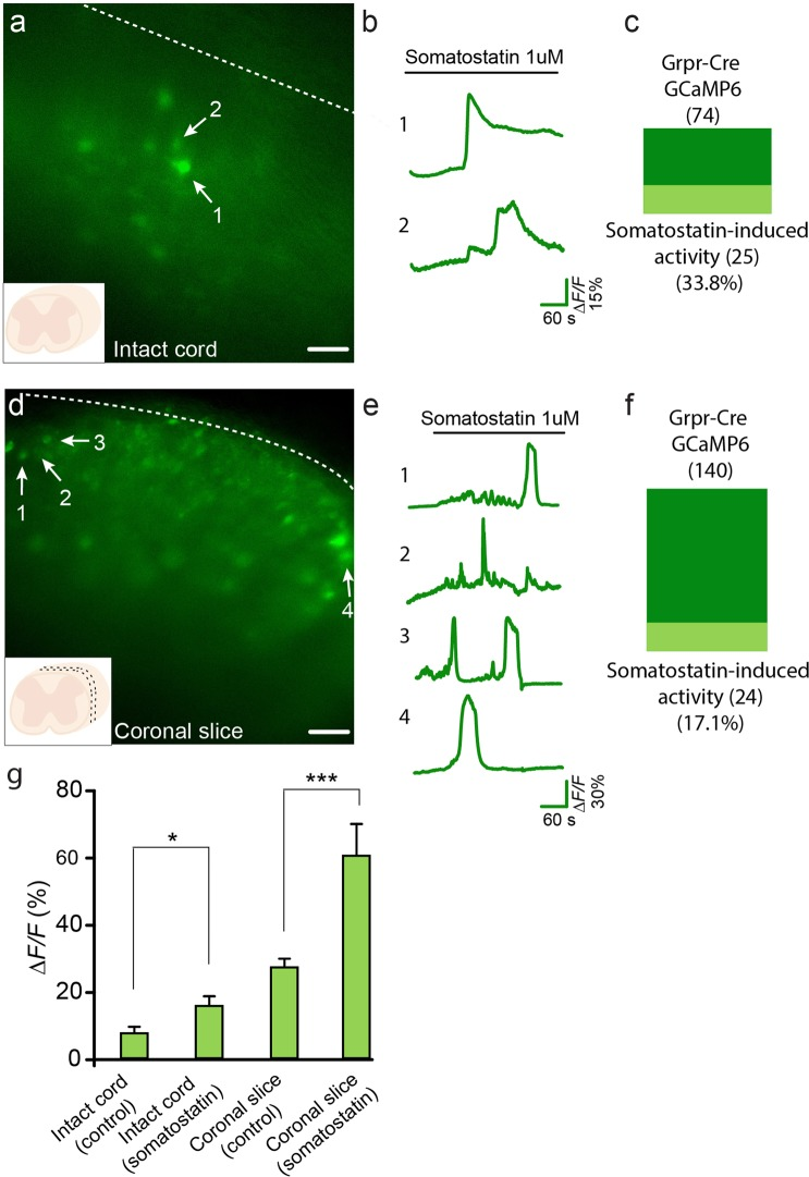 Grpr-Cre neurons expressing GCaMP6 are activated by somatostatin through disinhibition. Example traces from representative samples are shown. ( a ) Grpr-Cre neurons expressing GCaMP6 in an intact spinal cord. Numbers 1 and 2 indicate two neurons showing somatostatin-induced activity. ( b ) Fluorescence change traces from the intact spinal cord neurons indicated in a . ( c ) Proportion of Grpr-Cre neurons in the non-spontaneously active population expressing GCaMP6 in intact spinal cord that showed somatostatin-induced activity. ( d ) 300 µM coronal slice with Grpr-Cre neurons expressing GCaMP6. Numbers 1–4 indicate four different neurons showing somatostatin-induced activity. ( e ) Fluorescence change traces from the neurons indicated by 1–4 in ( d–f ) Proportion of Grpr-Cre neurons in the non-spontaneously active population expressing GCaMP6 in coronal slices that showed somatostatin-induced activity. ( g ) Mean values for fluorescence change ( ΔF/F %) in GCaMP6 intensity for the intact cord and coronal slices, imaged at control conditions and when somatostatin was bath applied. Scale bar corresponds to 40 µm. The data is presented as mean ± standard error.
