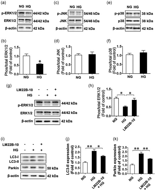 ERK1/2 is required for HG‐induced mitophagy in SMG‐C6 cells. The levels of phosphorylated and total ERK1/2 (a and b), JNK (c and d) and p38 (e,f) were detected by western blot analysis. β‐Actin was used as a loading control. n = 6, * p