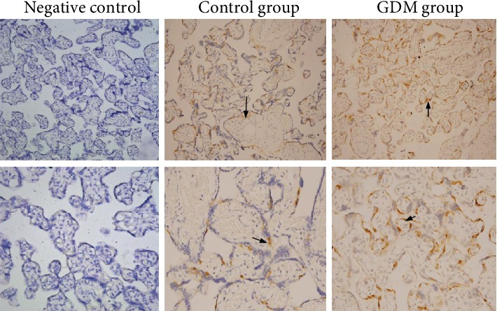 Immunohistochemistry showing the localization of DUSP9 protein in placental tissues from mothers with gestational diabetes mellitus (GDM) or with normal pregnancies. As negative controls, tissue sections were incubated in parallel with isotype <t>IgG</t> at the same concentration as the primary antibody or with only secondary antibody without primary antibody. DUSP9 was observed in the cytotrophoblasts of both groups (arrows). Magnification: 200x (upper row) or 400x (lower row).