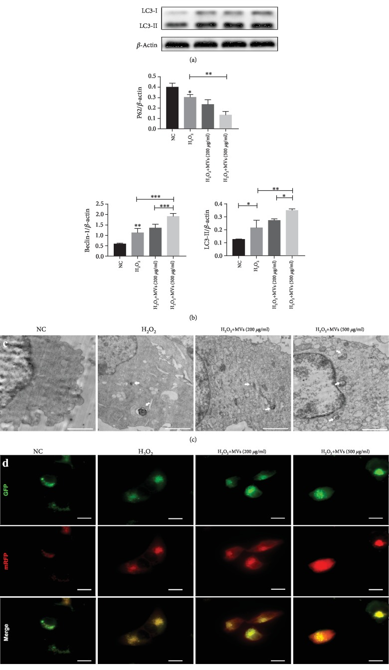 hESC-NSC-derived MVs increased the level of cell autophagy after H 2 O 2  stimulation. Representative western blot images showing the protein levels of LC3, Beclin-1, and P62.  β -Actin was used as an internal control (a, b). Autophagosomes were detected by tandem fluorescent mRFG-GFP-LC3 assay, scale bars: 15 μ m (c). Autophagosomes (white arrow) were measured by TEM in four groups, scale bars: 2 μ m (d). Every experiment was repeated at least three times; error bars indicate mean ± SD ( ∗ P