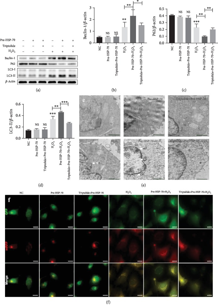 HSP-70 increased the level of cell autophagy after H 2 O 2  stimulation. (a–d) Representative western blot images showing the protein levels of LC3, Beclin-1, and P62.  β -Actin was used as an internal control. (e) Autophagosomes (white arrow) were detected by tandem fluorescent mRFG-GFP-LC3 assay, scale bars: 15 μ m. (f) Autophagosomes were measured by TEM in four groups. Every experiment was repeated at least three times, scale bars: 2 μ m. Error bars indicate mean ± SD ( ∗ P
