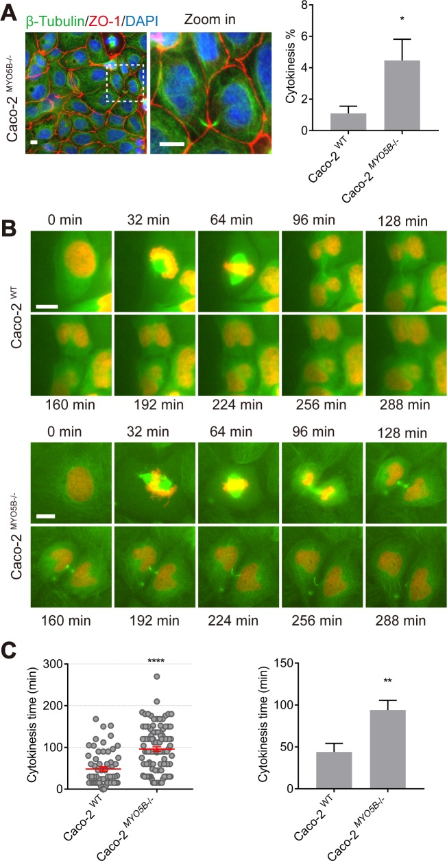 Loss of MYO5B causes cytokinesis delay. (A) Caco2 WT and Caco2 MYO5B−/− cells were fixed and stained as indicated. The percentage of cytokinesis with both daughter cells was quantified. n > 1,000 cells/experiment were analyzed for N = 3 independent experiments. Values for each data point can be found in S2 Data . (B) Live cell imaging shows x-y-t time-lapse mitosis images on Caco2 WT and Caco2 MYO5B−/− cells expressing <t>β-tubulin-GFP</t> and histone2B-mCherry. (C) The time of cytokinesis duration was quantified. (Left side graph) Each dot indicates 1 mitotic cell's cytokinesis time. (Right side graph) The statistical analysis of the mean for each experiment. n ≥ 20 cells/experiment were analyzed for N = 3 independent experiments. Values for each data point can be found in S2 Data . t test, * p