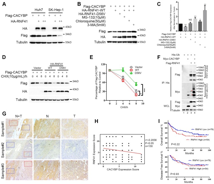RNF41 promotes the degradation of CACYBP. (A) Expression level of Flag-tagged CACYBP was steadily reduced with increasing amounts of RNF41 in Huh7 and SK-Hep-1 cells. (B) RNF41 with E3 ligase activity reduced the accumulation of exogenously expressed CACYBP, but this did not occur in the presence of the proteasome inhibitor MG132 or the lysosome inhibitors chloroquine or 3-MA. 293T cells were transfected with the indicated plasmids and incubated for 24 h. The cells were then incubated in fresh medium with none, 10 μM MG-132, 50 μM chloroquine, or 5 mM 3-MA for an additional 12 h. The cell lysates were analyzed by immunoblotting using the indicated antibody. Tubulin was used as a loading control. (C) Quantification of the expression level of Flag-tagged CACYBP after normalization to Tubulin. (D) Protein turnover of exogenously expressing Flag-tagged CACYBP in the presence of RNF41 WT or D56V mutant over the course of 8 h following the addition of 10 μg/mL cycloheximide. Tubulin was used as a loading control. (E) Quantification of the percentage of Flag-tagged CACYBP in the presence of RNF41 WT or D56V mutant for each time point compared to 0 h in (D). (F) RNF41 stimulates the poly-ubiquitination of CACYBP in vivo . 293T cells were transfected with the indicated plasmids and incubated for 24 h. Cell lysates were subjected to immunoprecipitation with His affinity nickel beads. Immunoblotting analysis was conducted for the indicated proteins. The red asterisks in lane 3 indicate nonspecific bands. (G) Representative images of RNF41 expression from the same sample slices used for examining CACYBP expression by immunohistochemistry analysis. Scale bar for the left column: 400 μm; Scale bar for the middle and right columns: 100 μm. T: tumor; N: non-tumor. (H) Scatterplot of expression scores of CACYBP vs RNF41 with a regression line showing a negative correlation. (I) RNF41 expression showed no significant association with OS (upper panel) and DFS (lower panel) in the HCC 