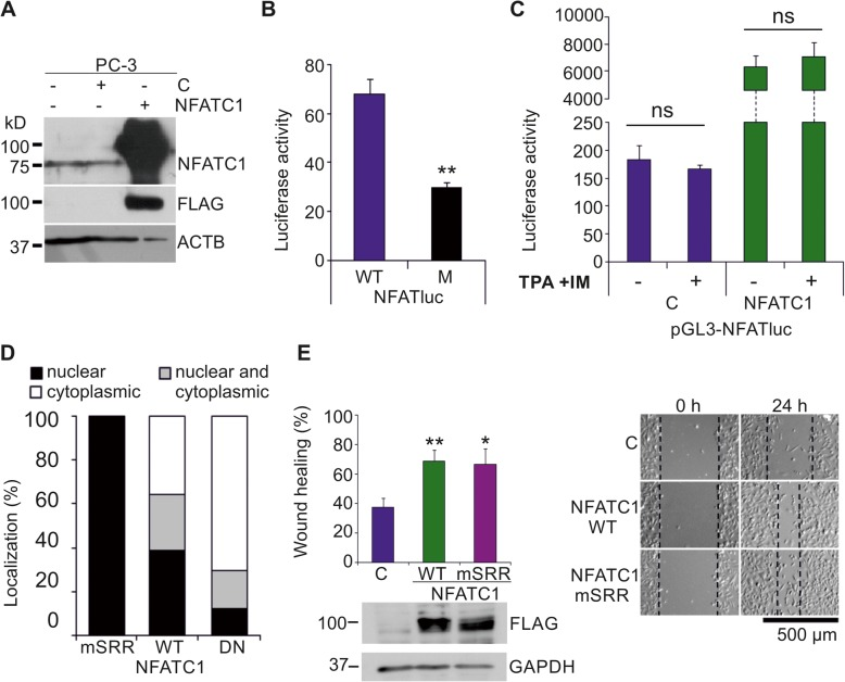 NFATC1 is constitutively active in PC-3 cells. Flag-tagged NFATC1 or its mutated derivatives were transiently expressed in PC-3 prostate cancer cells. Untransfected (−) or mock-transfected cells were used as controls. a The endogenous or ectopic expression levels of NFATC1 were analysed by Western blotting with antibodies against NFATc1 or Flag, while ACTB staining was used as a loading control. b The endogenous NFAT activity of PC-3 cells was measured by luciferase assays, using transiently transfected reporters with wild-type (WT) or mutated (M) NFAT binding sites. Shown are mean luciferase activities from two independent experiments. c The effects of TPA and ionomycin on NFAT activity were measured by luciferase assays. Shown are luciferase activities of duplicate samples from one representative experiment. d Subcellular localizations of transiently expressed wild-type (WT) NFATC1, the constitutively active (mSRR) mutant and the dominant negative (DN) mutant were analysed by confocal microscopy after staining with anti-Flag antibody. Shown are average localization patterns from one experiment with three parallel samples. e The abilities of WT NFATC1 and the mSRR mutant to promote cell motility were analysed by wound healing assays from three parallel samples. Equivalent expression of these proteins was confirmed by Western blotting with anti-Flag antibody, while GAPDH staining was used as a loading control