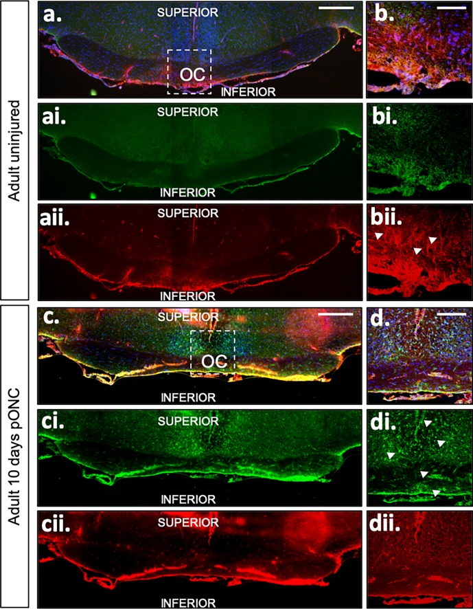 RC2 (red) and BLBP (green) staining of adult uninjured and 10 days pONC mouse coronal samples. Images of the OC and surrounding structures are shown and in (a–aii) adult-uninjured and (c–cii) -injured samples. Scale bar: 500 μm. High-power images of (b–bii) adult-uninjured and (d–dii) -injured samples show the chiasm structure in detail. Blue: DAPI. Scale bar: 100 μm. RC2-positive and BLBP-negative processes were observed extending through the optic chiasm midline (arrows, bii) in uninjured adult mice; while in 10-day pONC adult mice, only BLBP-positive staining was observed (arrows, di).