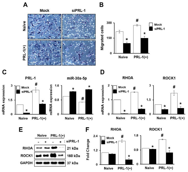 PRL-1-Targeted miRNA expression regulates migration ability through the RHO family. ( A ) Representative images and ( B ) the number of migrated cells in the naïve PD-MSCs and PRL-1(+) PD-MSCs determined using a Transwell insert system following small interfering RNA (siRNA) PRL-1 (siPRL-1) treatment (50 nM) for 24 h. ( C ) mRNA expression of PRL-1 and targeted hsa-miR-30a-5p expression, and ( D ) RHOA and ROCK1 in migratednaïve and PRL-1(+) PD-MSCs determined using a Transwell insert system following siPRL-1 treatment (50 nM) for 24 h as determined by qRT-PCR.( E ) Protein levels of RHOA and ROCK1 and ( F ) their quantification in migrated naïve and PRL-1(+) PD-MSCs according to siPRL-1 treatment by Western blotting. All experiments were performed in at least triplicate. Data from each group are shown as means ± SD, determined by Student's t -test. Scale bars = 100 μm. * p