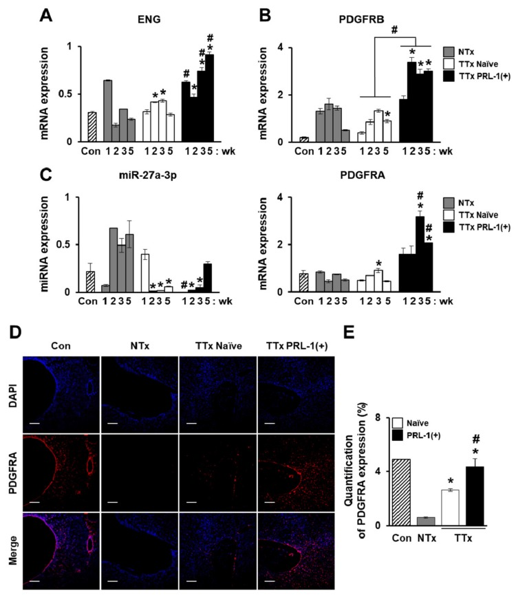 Improved vascular remodeling by PRL-1(+) PD-MSCs through the regulation of miRNA expression by platelet-derived growth factor receptor alpha (PDGFRA)in a BDL-injured rat model. ( A ) qRT-PCR of endoglin (ENG), and ( B ) platelet-derived growth factor receptor beta (PDGFRB) and ( C ) PDGFR alpha (PDGFRA)-targeted rno-miR-27a-3p expression in BDL-injured rat liver tissue after the administration of naïveand PRL-1(+) PD-MSCs at one, two, three, and fiveweeks. ( D ) Localizationof PDGFRA expression and ( E ) quantification of PDGFRA+ cells in rat liver sections from each group (Con, NTx, TTx Naïve, and TTx PRL-1(+)) at one week as determined by immunofluorescence (red, PDGFRA; blue, DAPI). Scale bars = 100 μm. All experiments wereconducted in at least triplicate. Data from each group are expressed as means ± SD, determined by Student's t -test.* p