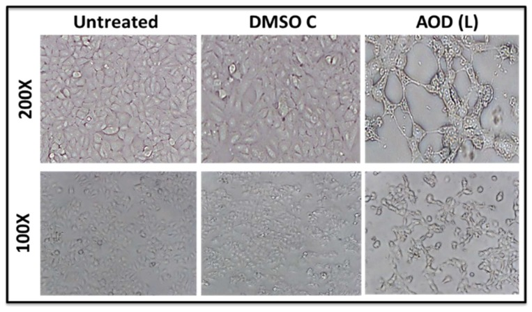 Photomicrographs of MCF-7 cells treated with 250 µg/mL of A. orientalis dichloromethane leaf fraction (AOD (L)), 30 h post treatment. DMSO C, DMSO control having the same amount of DMSO as the test sample.