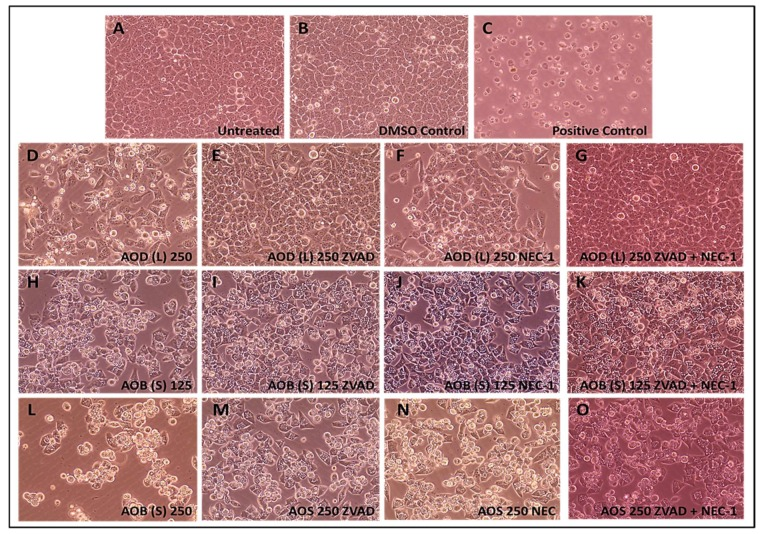 Photomicrographs of HeLa cells treated with 250 µg/mL of the A. orientalis dichloromethane leaf (AOD (L)) fraction or 125 and 250 µg/mL n-butanol stem (AOB (S)) fraction for 24 h. Samples: ( A ) Untreated; ( B ) DMSO control; ( C ) Positive control-treated; ( D ) 250 µg/mL AOD (L)-treated; ( E ) 250 µg/mL AOD (L)-treated cells pretreated with ZVAD, or ( F ) NEC-1, or ( G ) both; ( H ) 125 µg/mL AOB (S)-treated; ( I ) 125 µg/mL AOB (S)-treated cells pretreated with ZVAD, or ( J ) NEC-1, or ( K ) both; ( L ) 250 µg/mL AOB (S)-treated; ( M ) 250 µg/mL AOB (S)-treated cells pretreated with ZVAD, or ( N ) NEC-1, or ( O ) both. ZVAD = Z-VAD-FMK; NEC-1, Necrostatin 1. The DMSO Control sample contains the same amount of DMSO as in the 250 µg/mL sample of the treatment. Magnification: 400×.