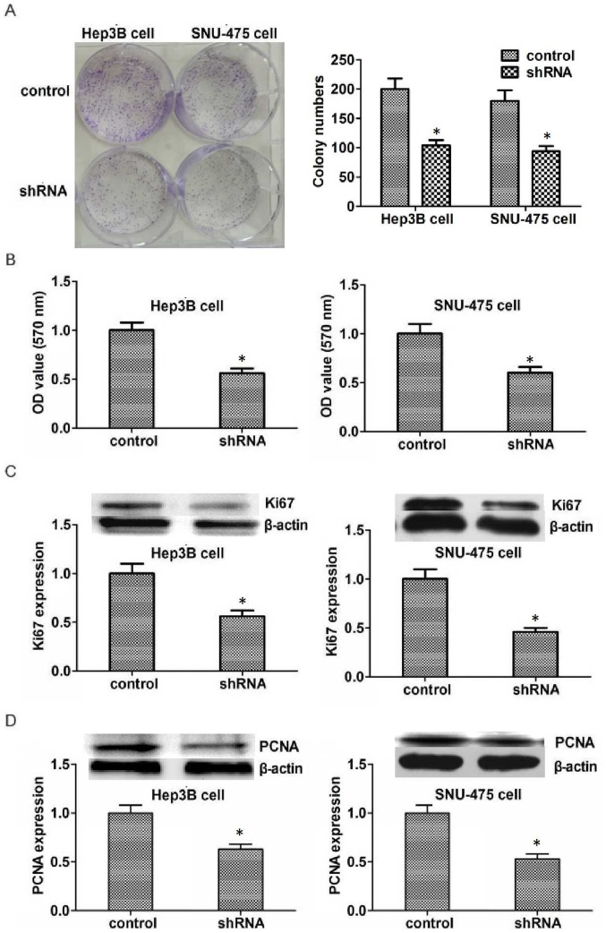 Knockdown of KIFC1 reduces proliferation of Hep3B and SNU-475 cells. (A) Colony formation and (B) MTT assays examined Hep3B and SNU-475 cell lines transfected with control or KIFC1 shRNA plasmids. (C and D) Western blot analysis demonstrated that (C) Ki67 and (D) PCNA expression was downregulated in Hep3B and SNU-475 cells. Data are presented as mean ± standard deviation. *P