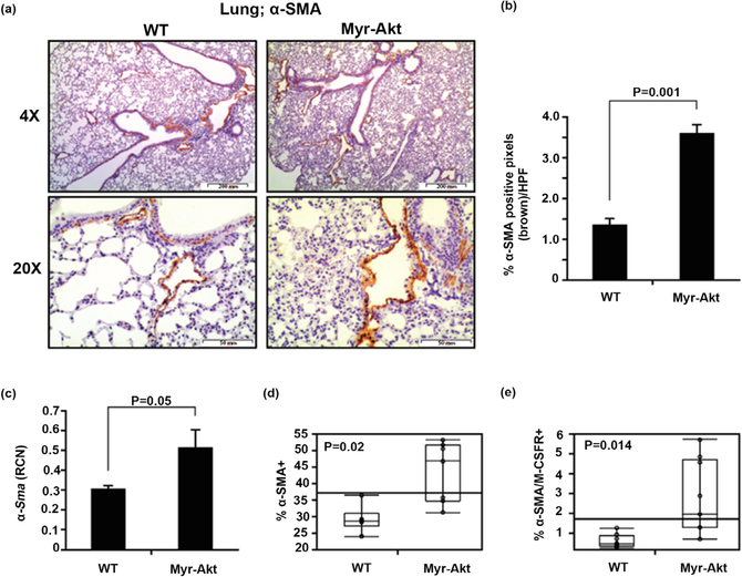 Differential myofibroblast expression in the lungs of Myr-Akt and WT mice. (a) 6 – 8 week old Myr-Akt or WT mice were sacrificed and lungs harvested, paraffin embedded, and subjected to α -SMA immunohistochemical staining for myofibroblasts. Ten pictures per section were imaged using 4X and 20X objectives (40× and 200× magnification, respectively). (b) Images were quantified by histogram analysis using Adobe Photoshop CS5 software and percent brown stain ( α -SMA+ pixels) per high-power field (HPF) from at least five images per section are expressed as mean ± SEM. (c) Total RNA was extracted from Myr-Akt or WT littermate mouse lungs and α -SMA mRNA was measured by qRT-PCR. Data are expressed as relative copy number (RCN) of α -SMA mRNA expression over the average of endogenous control RNAs ( Cap 1, Rpl 4 and Gapdh ). Data represent the mean RCN ± SEM. Single-cell suspension from lung homogenate were immunostained using mouse α-SMA antibodies or double-immunostained with α -SMA and M-CSF-R (CD115) antibodies and analyzed by flow cytometry. (d) Data represents mean percent of α -SMA+ cells and (e) α -SMA+/M-CSF-R+ cells ± SEM. 5 pairs of age-matched littermate mice were used for each experiment.