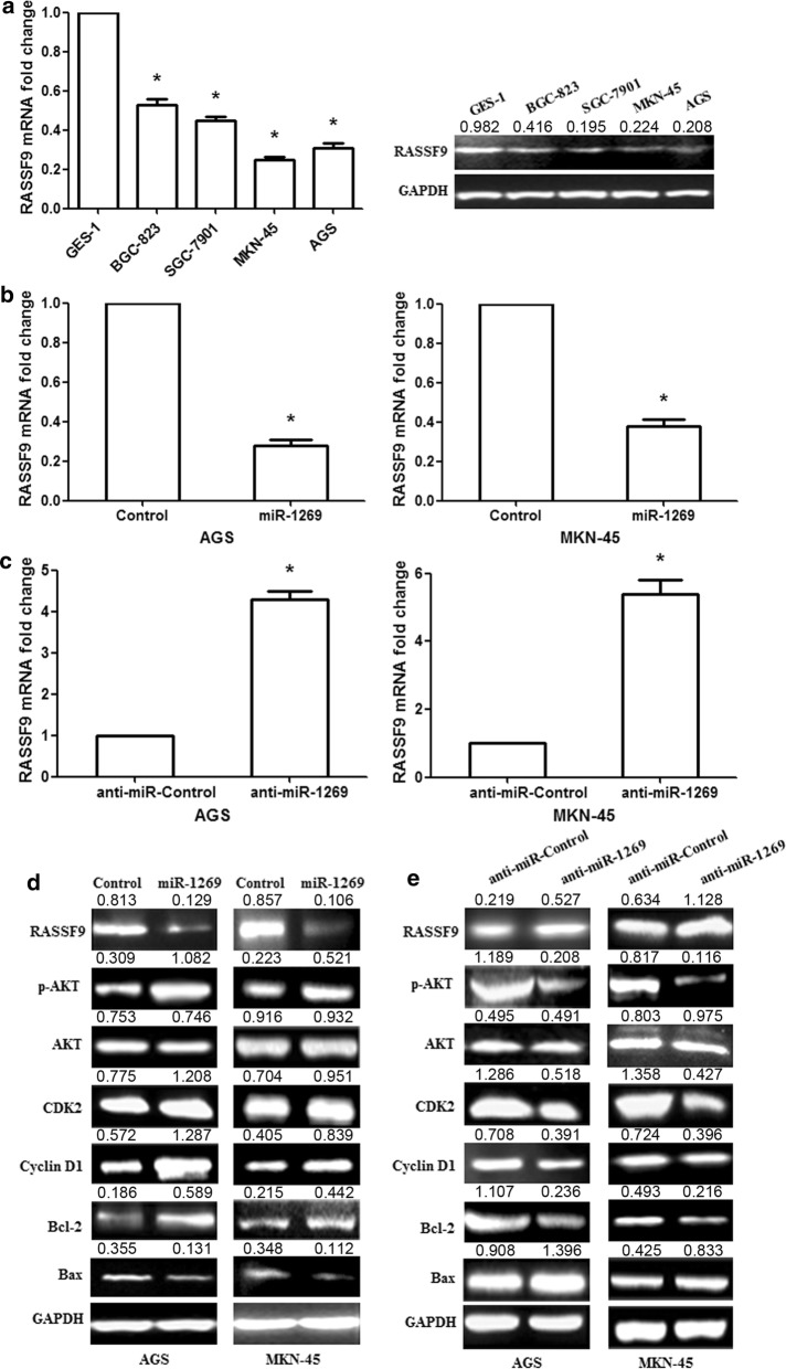 miR-1269 regulates the AKT and Bcl-2/Bax signaling pathways in human GC cells by targeting RASSF9. a RASSF9 mRNA and protein expression levels were significantly decreased in GC cell lines (BGC-823, SGC-7901, MKN-45 and AGS) compared with a normal gastric epithelial cell line (GES-1). b RASSF9 mRNA was examined in AGS/MKN-45 cells after miR-1269 overexpression. c RASSF9 mRNA was determined in AGS/MKN-45 cells after anti-miR-1269 treatment. d miR-1269 overexpression promoted the expression of the p-AKT, Cyclin D1, CDK2 and Bcl-2 proteins and inhibited RASSF9 and Bax expression in AGS/MKN-45 cells. e Anti-miR-1269 inhibited p-AKT, Cyclin D1, CDK2 and Bcl-2 protein expression and increased RASSF9 and Bax expression. Wilcoxon test, *p