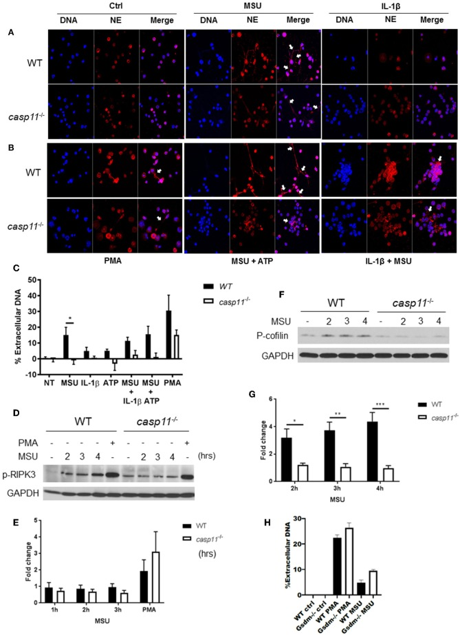Caspase-11 −/− neutrophils produce less NETs independently of Rip3 phosphorylation and associated with altered cofilin phosphorylation in response to MSU in vitro . (A,B) Immunofluorescence assay of WT and caspase-11 −/− neutrophils treated with MSU, MSU + ATP, IL-1β, IL-1β + MSU, and PMA for 3 h. Cells were stained with neutrophil elastase (NE) and DAPI (DNA) to visualize NET formation, n = 3. (C) Quantification of NET formation in vitro . Response measured from WT and caspase-11 −/− neutrophils stimulated with MSU, ATP, IL-1β, combinations of treatments, and PMA. Cells were stained with Sytox green, n = 2 independent experiments (3 mice per group, total 6 mice), * p