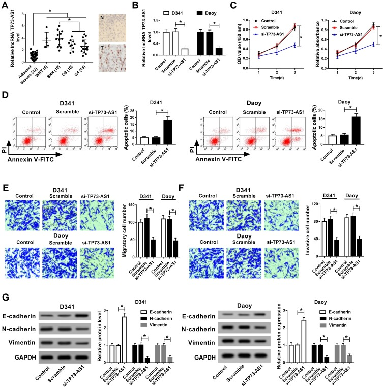 The knockdown of LncRNA TP73-AS1 inhibited cell proliferation, migration, invasion, and induced apoptosis of medulloblastoma cells. ( A ) RT-PCR and ISH revealed the level of TP73-AS1 in 42 medulloblastoma samples. ( B ) RT-PCR showed the expression level of TP73-AS1 after si-TP73-AS1 transfection in Daoy and D341 cells. ( C ) The proliferation ability of Daoy and D341 cells transfected with si-TP73-AS1 was detected by CCK-8. ( D ) The apoptosis ability of Daoy and D341 cells transfected with si-TP73-AS1 was detected by flow cytometry. ( E, F ) transwell assay showed the number of invading cells after si-TP73-AS1 was transfected into Daoy and D341 cells. ( G ) The expression of E-cadherin, N-cadherin and Vimentin proteins in Daoy and D341 cells transfected with si-TP73-AS1 was detected by Western blot.* P