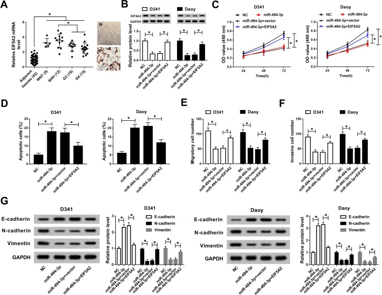EIF5A2 overexpression reversed the effects of miR-494-3p knockdown on proliferation, invasion, and apoptosis of medulloblastoma cells. ( A ) RT-PCR and IHC revealed the expression level of EIF5A2 in 42 medulloblastoma samples. ( B ) Western blot showed the expression level of EIF5A2 in Daoy and D341 cells after transfected with miR-494-3p or miR-494-3p+EIF5A2. ( C ) The CCK-8 assay was used to detect cell viability of Daoy and D341 cell transfected with miR-494-3p or miR-494-3p+EIF5A2 at the indicated time points. ( D ) Flow cytometry was used to evaluate apoptosis of Daoy and D341 cell transfected with miR-494-3p or miR-494-3p+EIF5A2. ( E, F ) Transwell assay showed the invaded cell number in Daoy and D341 cells transfected with miR-494-3p or miR-494-3p + EIF5A2. ( G ) The expression of E-cadherin, N-cadherin and Vimentin proteins in Daoy and D341 cells transfected with miR-494-3p or miR-494-3p + EIF5A2 were detected by Western blot.* P