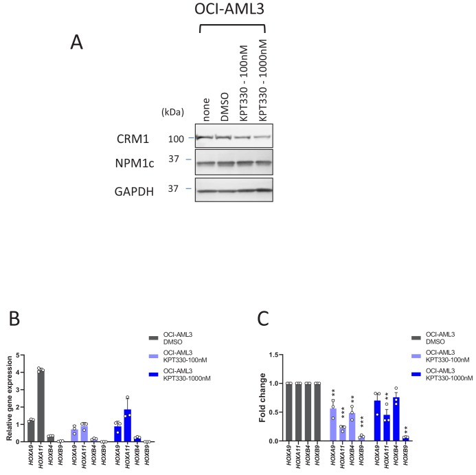 The effect of KPT-330 on the protein and HOX gene expression levels in OCI-AML3 cells. ( A ) Protein expression of CRM1, NPM1c and GAPDH in OCI-AML3 cells cultured in the absence or presence of DMSO (vehicle control) or KPT-330 (100 nM or 1000 nM) for 24 hr. The cell lysates were prepared in RIPA buffer and analyzed by immunoblotting using anti-CRM1, anti-NPM1c, or anti-GAPDH antibodies. ( B ) qPCR analysis of HOX cluster genes ( HOXA9 , HOXA11 , HOXB4 , and HOXB9 ) in OCI-AML3 cells treated with DMSO (vehicle control) or KPT-330 (100 nM or 1000 nM) for 24 hr. GAPDH was used as a reference gene. Data are presented as mean values ± SEM of three independent experiments (n = 3). ( C ) The data in ( B ) were reanalyzed to obtain a ratio by comparing the values of the KPT-330-treated samples with the values for DMSO-treated samples. Data are presented as mean values ± SEM. Asterisks indicate statistical significance determined by Student's t -test; **p