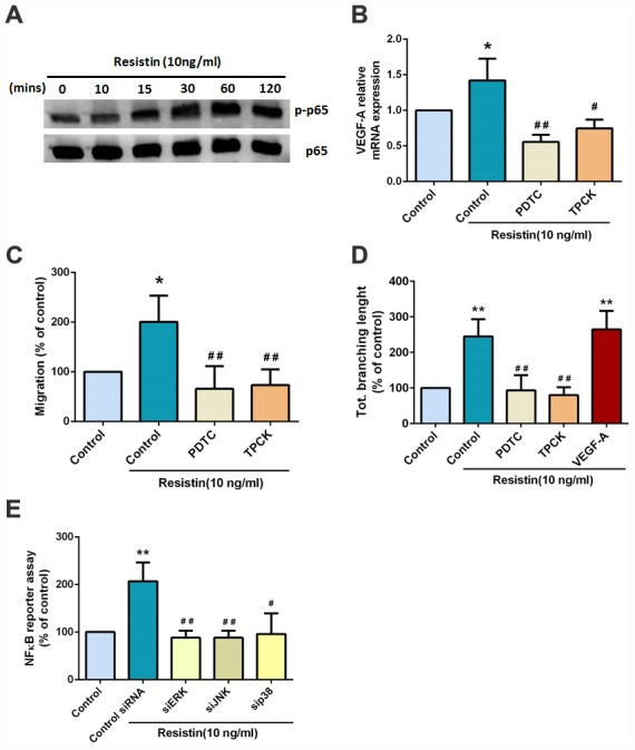 Resistin promotes VEGF-A expression in osteosarcoma and contributes to angiogenesis through the NF-κB signaling pathway. ( A ) Osteosarcoma 143B cells were incubated with resistin (10 ng/ml) for the indicated times and p65 phosphorylation was determined by Western blot analysis. ( B ) Osteosarcoma 143B cells were pretreated with NF-κB inhibitors (PDTC 10 μM; TPCK 3 μM) for 30 min then stimulated with resistin (10 ng/ml) for 24 h. VEGF-A expression was examined by qPCR. ( C – D ) Osteosarcoma 143B cells were pretreated with NF-κB inhibitors (PDTC 10 μM; TPCK 3 μM) for 30 min then stimulated with resistin (10 ng/ml) for 24 h. CM was collected and applied to EPCs for 24 h. Cell migration and capillary-like structure formation in EPCs were examined by Transwell and tube formation assays, respectively. ( E ) Cells were transfected with indicated siRNA, the luciferase activity was examined. The results were obtained from three independent experiments. * p