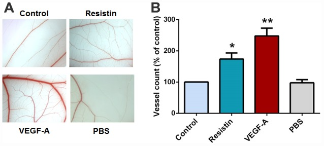 Effects of resistin on VEGF-A-induced angiogenesis in the CAM model. ( A ) PBS, VEGF-A (50 ng/ml), control osteosarcoma 143B cell CM and resistin-treated osteosarcoma 143B CM were mixed in Matrigel and subjected to the CAM assay, then photographed with a stereomicroscope on developmental day 12. ( B ) Angiogenesis was quantified by counting the number of blood vessel branches. * p