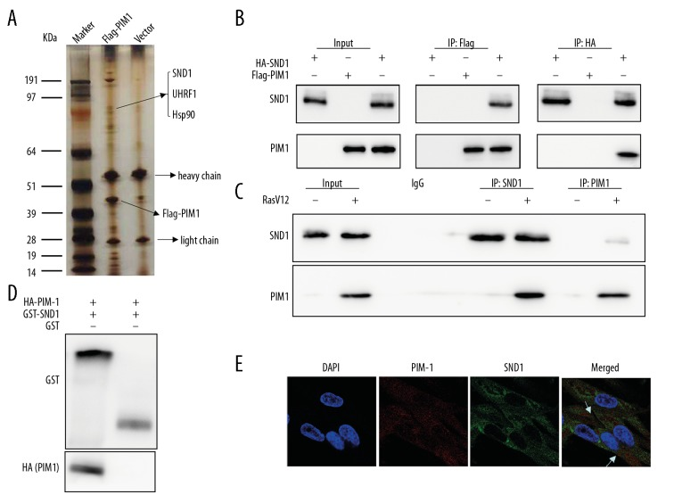 PIM1 interacts with SND1. ( A ) FLAG-PIM1 was overexpressed in 2BS cells, and then cellular proteins were collected for electrophoresis, silver staining, and mass spectrometric analysis to detect target proteins interacting with PIM1. ( B ) HA-SND1 and Flag-PIM1 plasmids were co-transfected into 293T cells. Co-immunoprecipitation and Western blot analysis were performed with corresponding antibodies. ( C ) In RasV12-induced senescent cells, co-immunoprecipitation was performed and precipitated complexes were subjected to Western blot analysis by using antibodies against PIM1 and SND1, respectively. ( D ) GST-SND1 and HA-PIM1, expressed from bacteria, were employed to perform GST pull-down experiments. ( E ) Co-localization of PIM1 and SND1 in the indicated 2BS cells by representative immunofluorescence staining. Data are presented as mean±SD. The experiments were repeated 3 times.