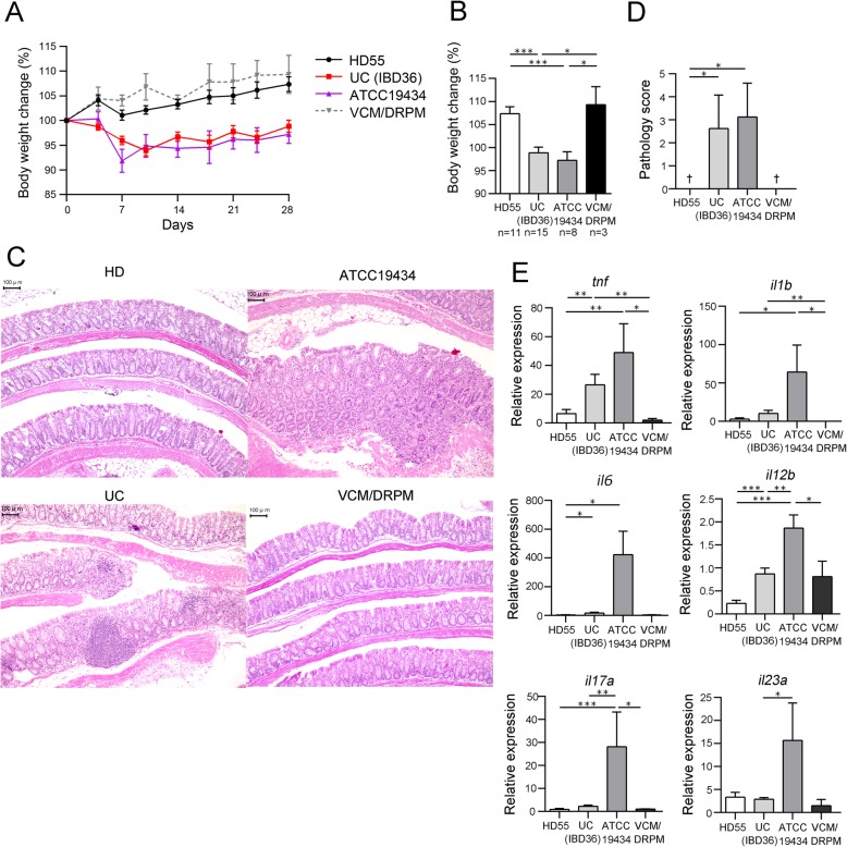 E. <t>faecium</t> in the gut causes colitis in Il10 −/− mice. Fecal transplantation from selected subjects (HD55 and IBD36) and inoculation of E. faecium strain ATCC 19434 was performed in microbiota-depleted Il10 −/− mice. The control group was treated with antibiotics (VCM/DRPM) in the absence of transplantation. a Changes in body weight (%) throughout the course of the experiment and b on day 28. c Representative histological sections of the murine colon at the time of euthanasia. Bars, 100 μm. d Mean pathology scores for each group of mice. †, average pathology score of 0. e mRNA expression levels of inflammatory cytokines in the colon as analyzed by real-time PCR. Values shown in a , b , d , and e are the mean ± SE. Statistical differences between two values were analyzed using a Mann-Whitney U test. * P