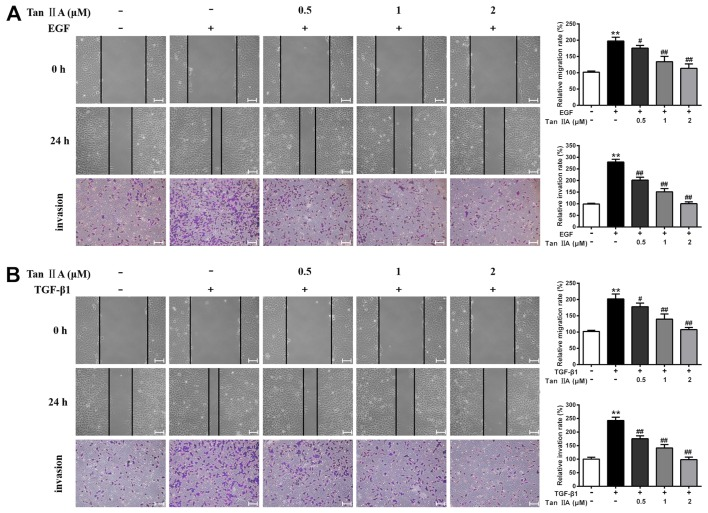 Effects of Tan IIA on EGF- and TGF-β1-induced migration and invasion of HepG2 cells. The migration and invasion of HepG2 cells that were untreated or treated with (A) 20 ng/ml EGF, (B) 10 ng/ml TGF-β1 and Tan IIA (0.5, 1 and 2 µM) were analyzed by wound healing and Transwell assays, respectively. Scale bars, 100 µm. **P