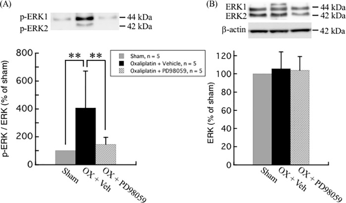 Effect of ERK inhibitor PD98059 on oxaliplatin-induced upregulation of ERK phosphorylation in rat DRG. (A) The ratio of p-ERK to ERK expression was significantly increased in DRG of oxaliplatin treated rats, which was inhibited by PD98059. (B) No difference was observed in the protein level of ERK among sham, oxaliplatin + vehicle (20% DMSO), and oxaliplatin + PD98059 treatment groups. Comparisons between two groups of the blots were performed by Student's t-test. All data are calculated as mean ± SD of 5 animals. ** P