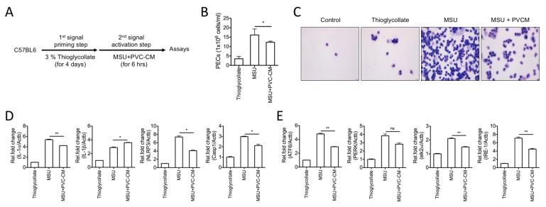 PVC-CM reduces inflammation and ER stress in in macrophages of MSU-induced peritonitis. (A) Schematic diagram of experiments using the peritonitis mouse model (n=8 per group). (B) PECs were determined by counting exudate cells with a cell counter. (C) Cytospins of isolated PECs were stained with Wright-Giemsa stain. (D, E) Relative mRNA levels of inflammatory (IL-1 α , IL-1 β , NLRP3, and Casp1) and ER stress-related genes (ATF6, PERK, elk2 α , and IRE-1) were analyzed using SYBR green-based quantitative real-time PCR. Error bars indicate SD (*p