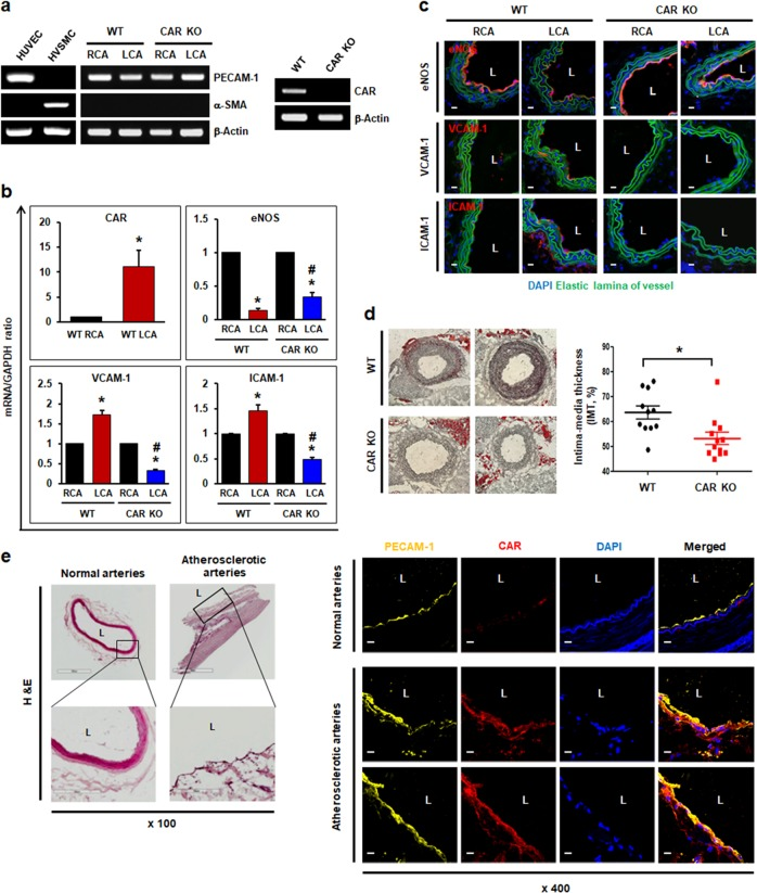 CAR deletion protects the proatherogenic endothelium under disturbed flow. Wild-type (WT) C57BL/6 or EC-specific CAR KO mice were partially ligated in the LCA. a Twenty-four hours after LCA ligation, the mice were euthanized, and EC-enriched RNA was extracted from both carotid arteries. EC-enriched RNA was confirmed by assessing an endothelial-specific marker (PECAM-1), a smooth muscle cell-specific marker (α-smooth muscle actin [α-SMA]), and β-actin (internal control). HUVECs were used as a positive control for PECAM-1 and a negative control for α-SMA. Human vascular smooth muscle cells (VSMCs) were used as a positive control for α-SMA and a negative control for PECAM-1. The knockout of endothelial CAR in EC-specific CAR KO mice was confirmed by RT-PCR. Representative images are shown ( n = 5). b Levels of mRNAs encoding eNOS, VCAM-1, and ICAM-1 in EC-enriched RNA were determined by real-time PCR ( n = 5; * P
