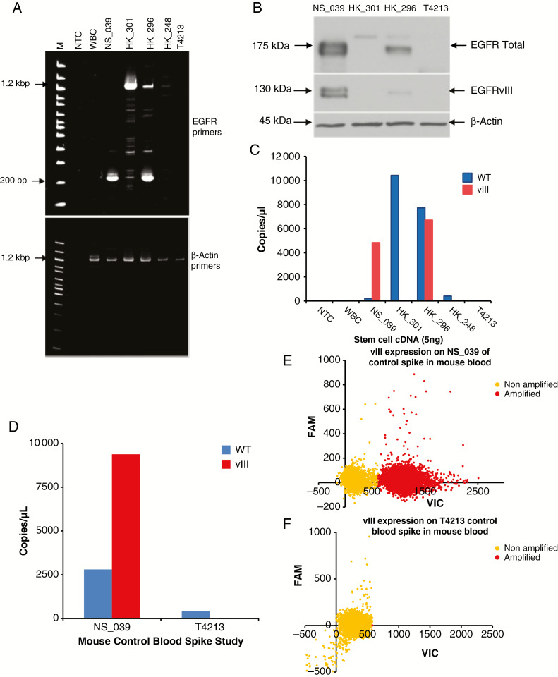 Detection of EGFRvIII in patient-derived glioma neurospheres. (A) cDNA extracted from various patient-derived glioma neurosphere cell lines were amplified using EGFR ORF primers ( upper panel ), β-Actin primers ( lower panel). (B) Western blot analysis confirms the expression of EGFR WT and EGFRvIII in various patient-derived glioma neurospheres. (C) Graphical representation of copies per microliter generated when dPCR assay was run on cDNA extracted from various patient-derived glioma neurospheres-EGFR WT (blue) and EGFRvIII (red). NS039 and HK296 both have abundant copies of vIII, whereas HK301 and HK296 have an abundance of EGFR WT. (D) Copies per microliter of EGFR WT and EGFRvIII generated when our dPCR assay was run on cDNA extracted from NS039 and T4213 cells spiked into mouse blood. These results emphasize that additional cell types do not affect the outcome of our assay. (E) Representative scatter plots of vIII expression (red) from NS039 cells (top) and T4213 (bottom) spiked into mouse blood following our digital PCR assay. Non-amplified wells are denoted in yellow.